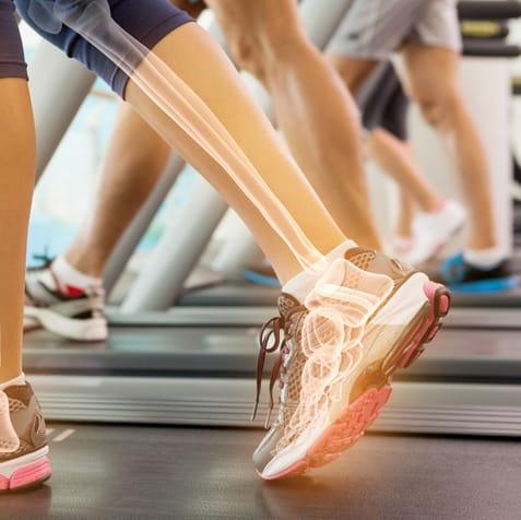 walking on treadmill showing ankle bones